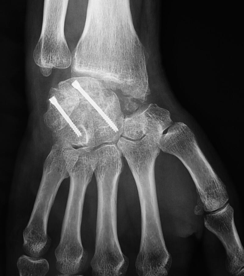 Arthrodèse partielle du carpe (vissage en compression)
