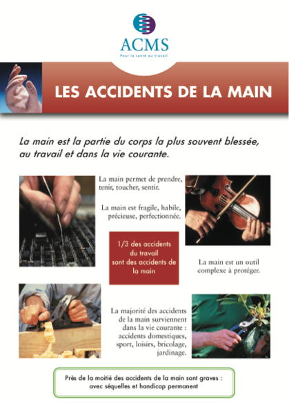 Prévention des accidents de la main au travail