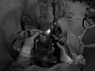 Arthroscopie du poignet