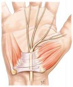 chirurgie du nerf médian au canal carpien
