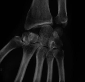 Résection de la première rangée des os du carpe