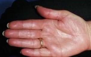 Algodystrophie