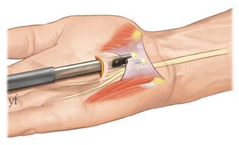 chirurgie du syndrome du canal carpien