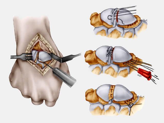 réparation du ligament scapholunaire