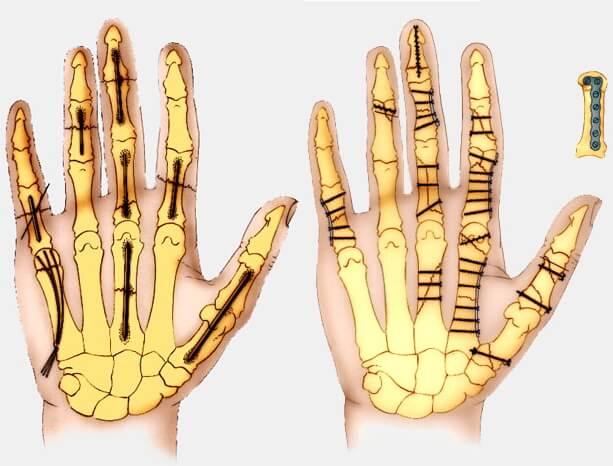 schéma fractures de la main