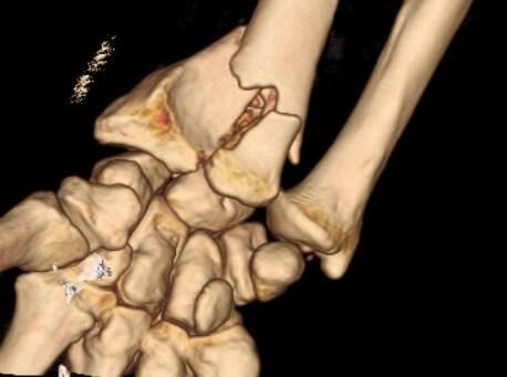 Fractures du poignet