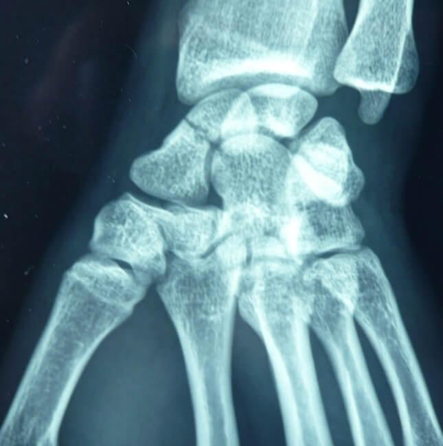 fracture du scaphoïde