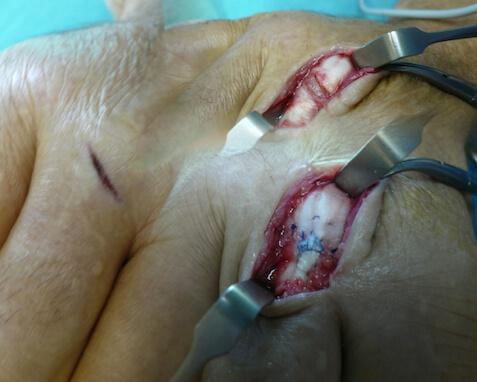 Lésion des tendons extenseurs