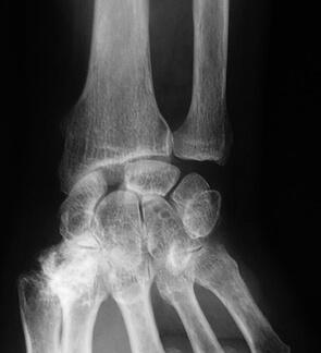 Arthrose après rupture du ligament scapho-lunaire