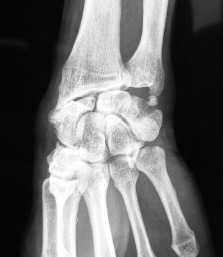 Arthrose après fracture ancienne du scaphoïde carpien