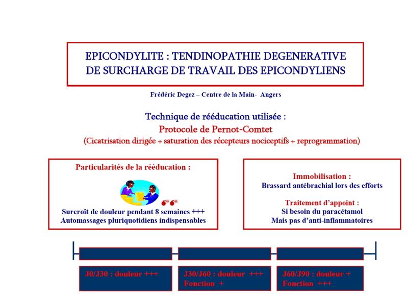 Protocole de rééducation Epicondylalgies