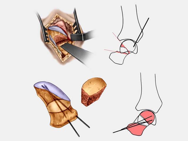 greffe osseuse du scaphoïde
